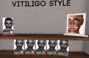 Bold and Beauty Vitiligo style